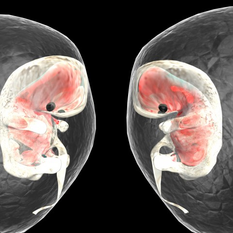 razvitie-litsa-u-embriona-2-01